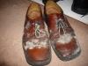 mouldy shoes